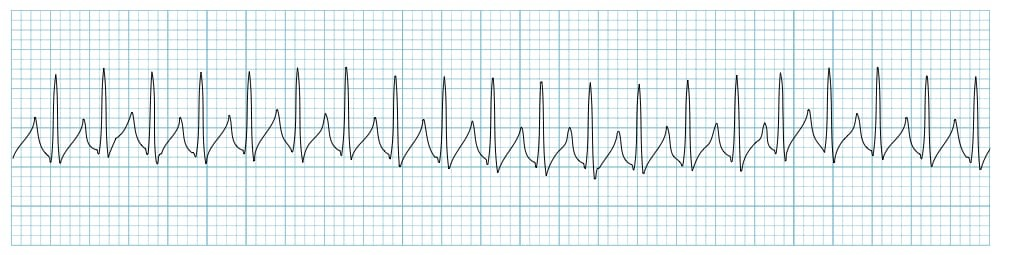Supraventricular-tachycardia SVT Rhythm Strip